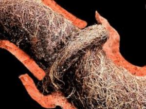 eyman_plumbing_tree_root_clogged_drain